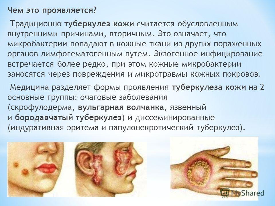 Чем это проявляется? Традиционно туберкулез кожи считается обусловленным внутренними причинами, вторичным. Это означает, что микробактерии попадают в кожные ткани из других пораженных органов лимфогематогенным путем. Экзогенное инфицирование встречае