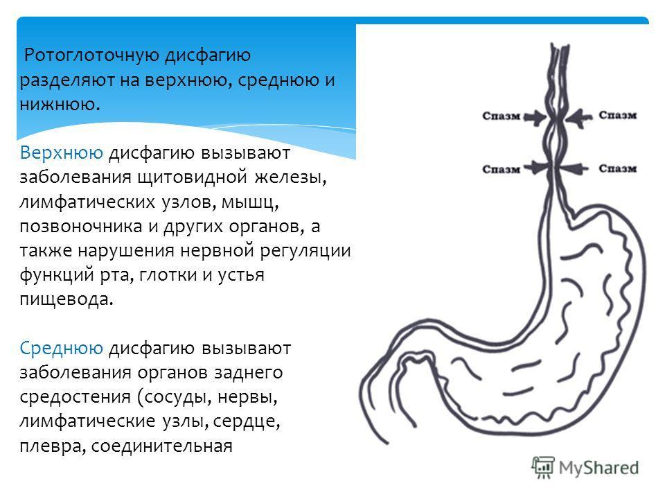 Ротоглоточную дисфагию разделяют на верхнюю, среднюю и нижнюю. Верхнюю дисфагию вызывают заболевания щитовидной железы, лимфатических узлов, мышц, позвоночника и других органов, а также нарушения нервной регуляции функций рта, глотки и устья пищевода