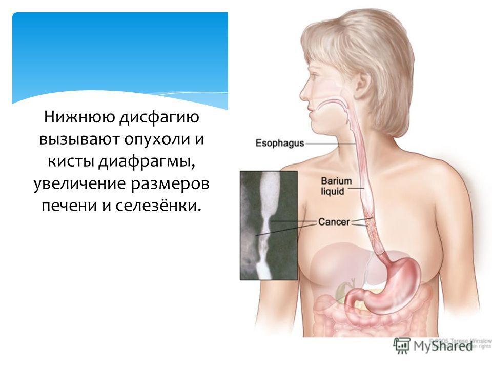 Нижнюю дисфагию вызывают опухоли и кисты диафрагмы, увеличение размеров печени и селезёнки.