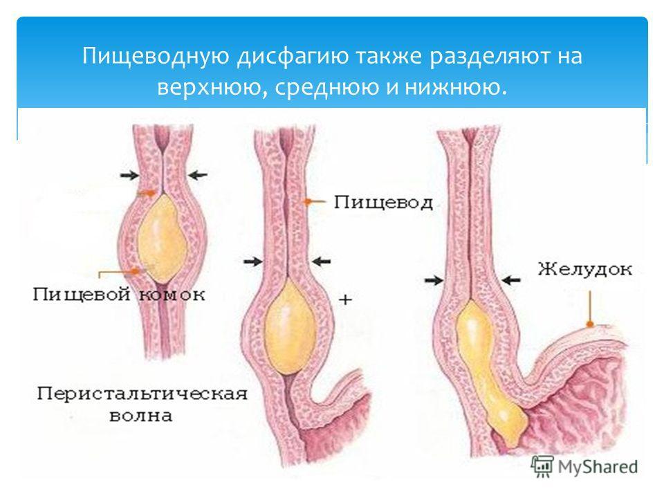 Пищеводную дисфагию также разделяют на верхнюю, среднюю и нижнюю.