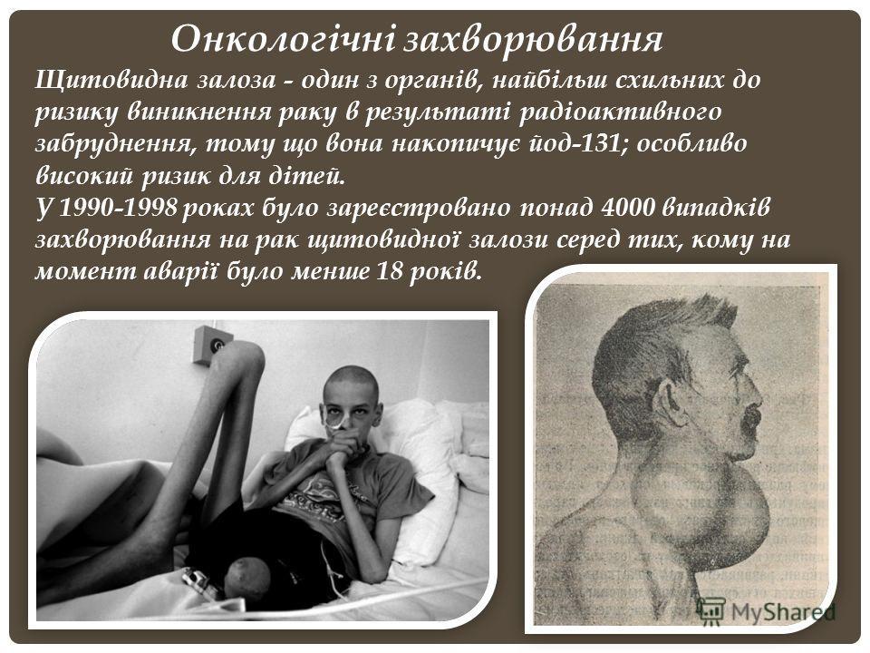Онкологічні захворювання Щитовидна залоза - один з органів, найбільш схильних до ризику виникнення раку в результаті радіоактивного забруднення, тому що вона накопичує йод-131; особливо високий ризик для дітей. У 1990-1998 роках було зареєстровано по