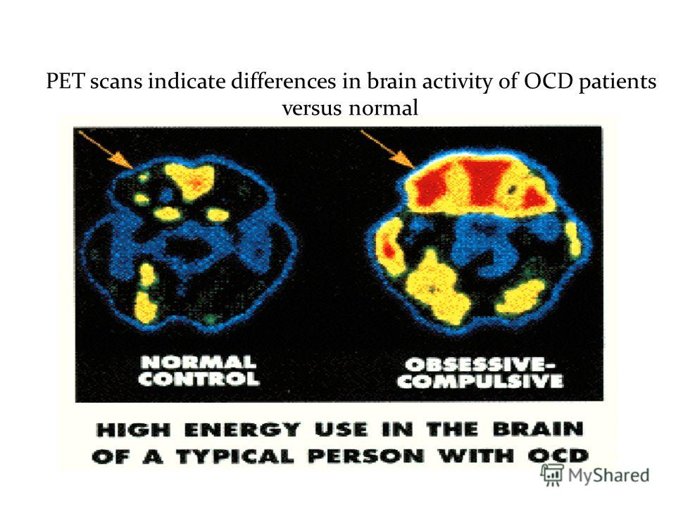 PET scans indicate differences in brain activity of OCD patients versus normal