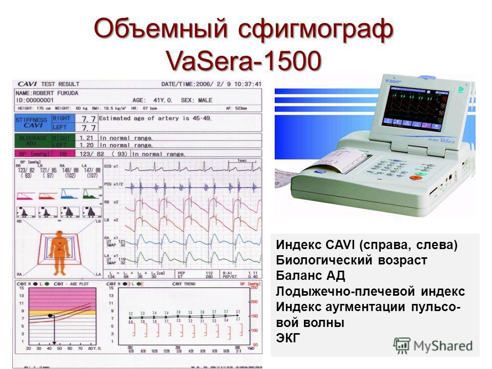 Объемный сфигмограф VaSera-1500 Индекс CAVI (справа, слева) Биологический возраст Баланс АД Лодыжечно-плечевой индекс Индекс аугментации пульсо- вой волны ЭКГ