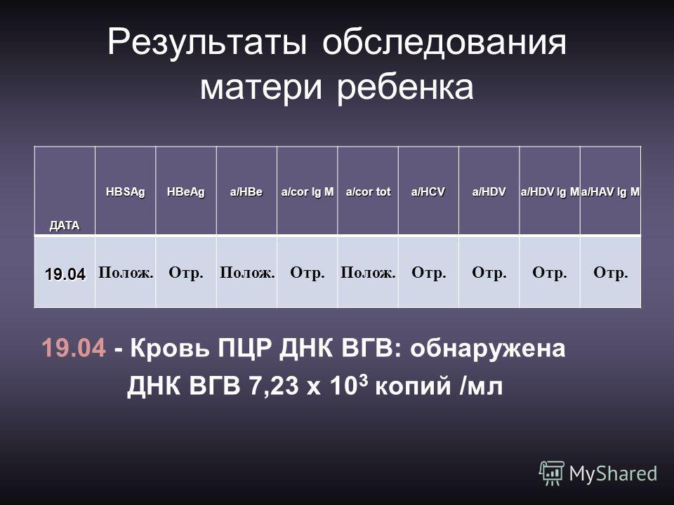 Результаты обследования матери ребенка ДАТАHBSAgHBeAg a/HBe a/cor Ig M a/cor tot a/HCV a/HDV a/HDV Ig M a/HАV Ig M 19.04 Полож.Отр.Полож.Отр.Полож.Отр. 19.04 - Кровь ПЦР ДНК ВГВ: обнаружена ДНК ВГВ 7,23 х 10 3 копий /мл