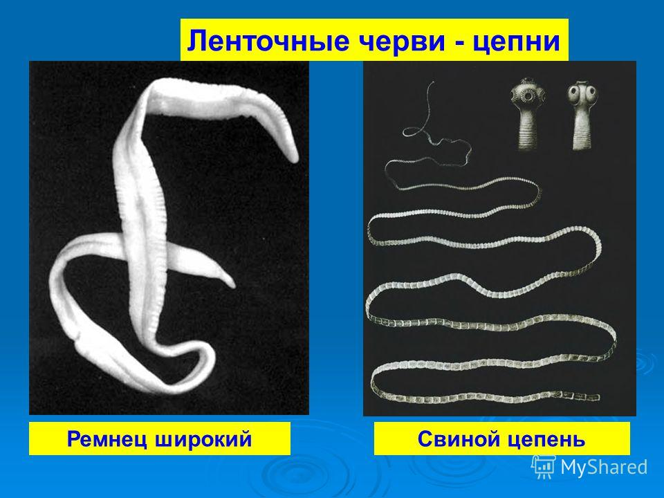 Ремнец широкийСвиной цепень Ленточные черви - цепни