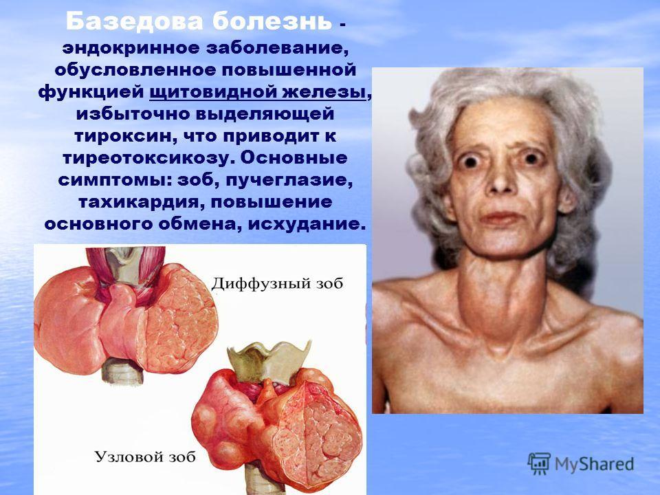 Базедова болезнь - эндокринное заболевание, обусловленное повышенной функцией щитовидной железы, избыточно выделяющей тироксин, что приводит к тиреотоксикозу. Основные симптомы: зоб, пучеглазие, тахикардия, повышение основного обмена, исхудание.
