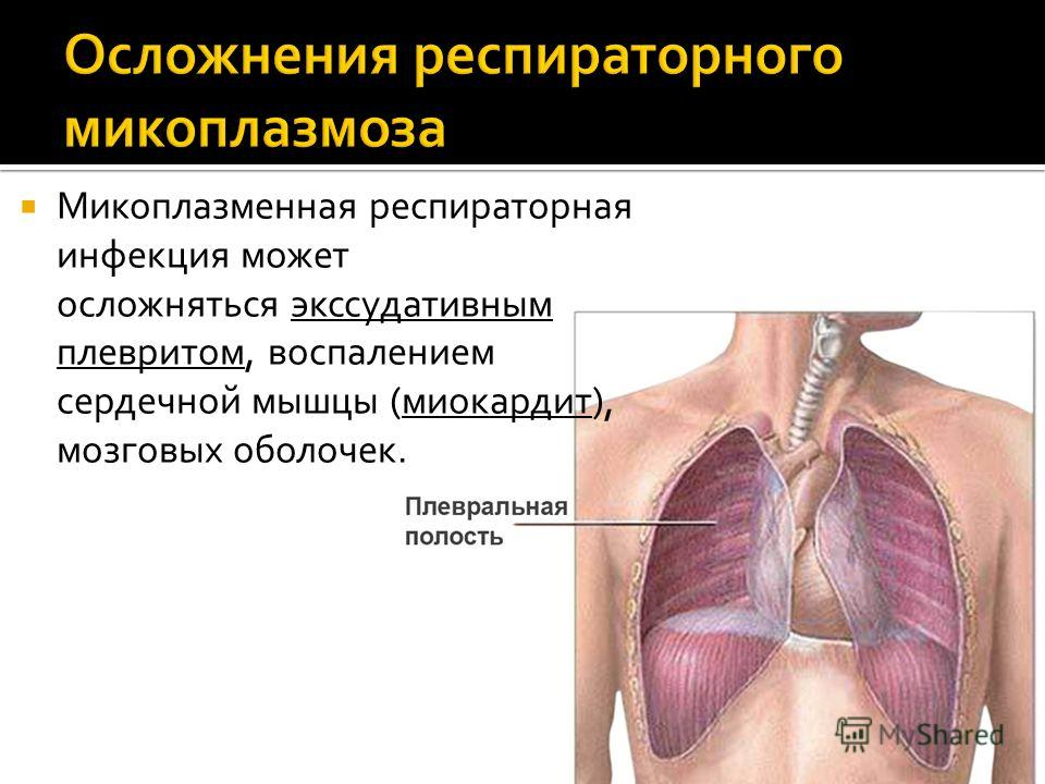 Микоплазменная респираторная инфекция может осложняться экссудативным плевритом, воспалением сердечной мышцы (миокардит), мозговых оболочек.