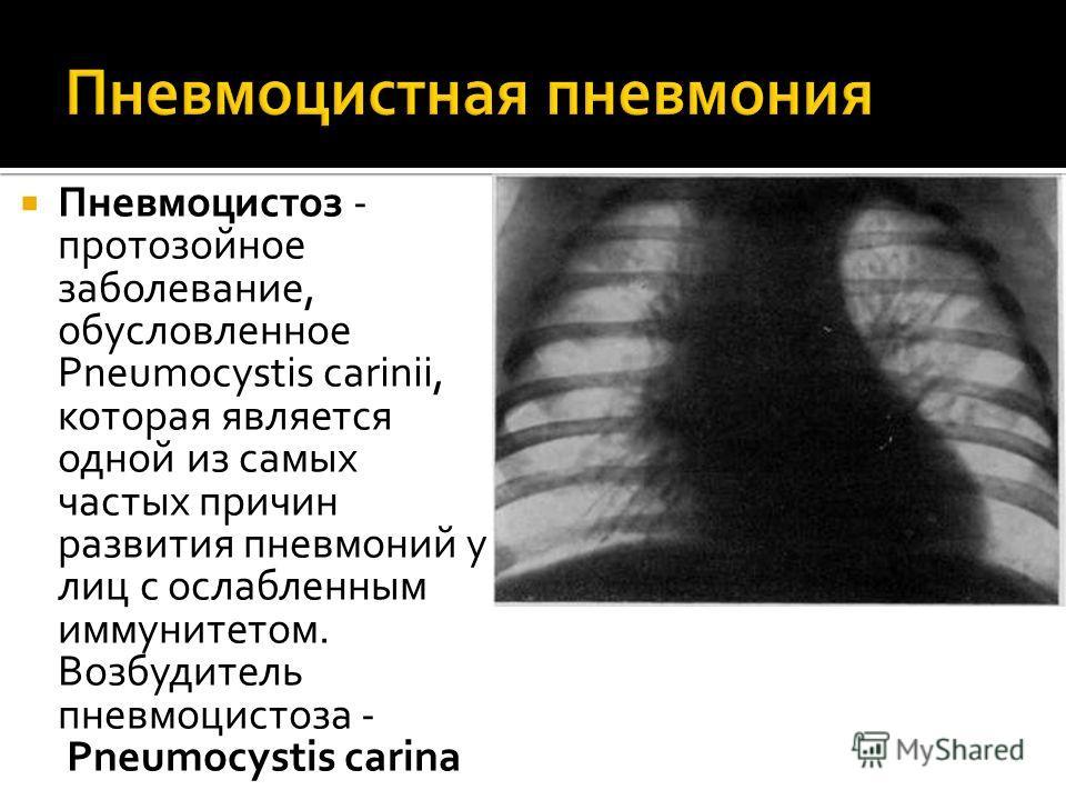 Пневмоцистоз - протозойное заболевание, обусловленное Pneumocystis carinii, которая является одной из самых частых причин развития пневмоний у лиц с ослабленным иммунитетом. Возбудитель пневмоцистоза - Pneumocystis carina
