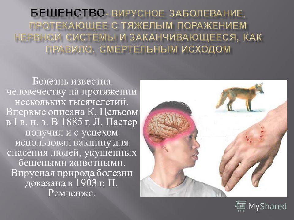 Болезнь известна человечеству на протяжении нескольких тысячелетий. Впервые описана К. Цельсом в I в. н. э. В 1885 г. Л. Пастер получил и с успехом использовал вакцину для спасения людей, укушенных бешеными животными. Вирусная природа болезни доказан