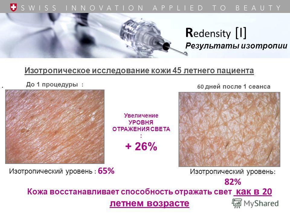 R edensity [I] Результаты изотропии Изотропическое исследование кожи 45 летнего пациента. До 1 процедуры : 60 дней после 1 сеанса Изотропический уровень : 65% Изотропический уровень : 82% Кожа восстанавливает способность отражать свет как в 20 летнем