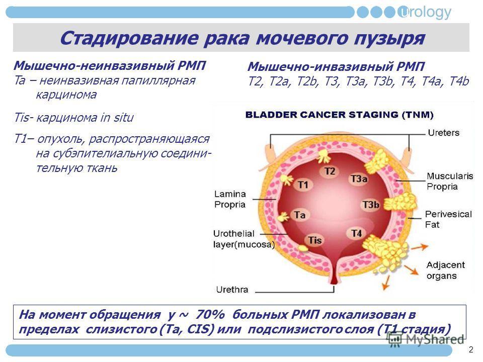 Стадирование рака мочевого пузыря 2 Мышечно-неинвазивный РМП Ta – неинвазивная папиллярная карцинома Tis- карцинома in situ T1– опухоль, распространяющаяся на субэпителиальную соедини- тельную ткань На момент обращения у ~ 70% больных РМП локализован