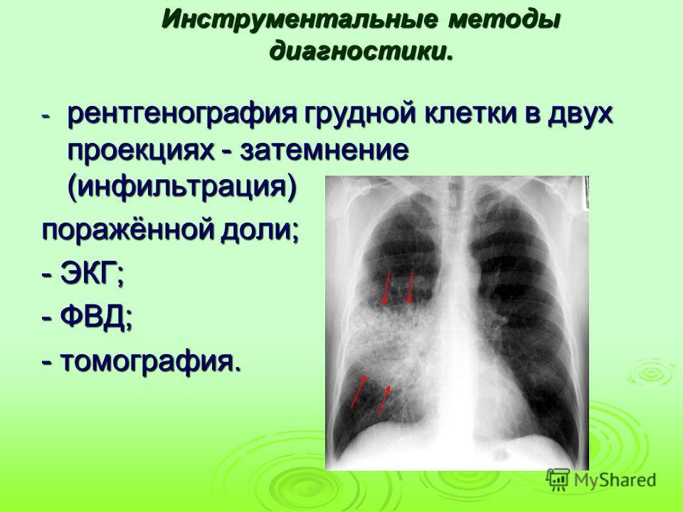 Инструментальные методы диагностики. - рентгенография грудной клетки в двух проекциях - затемнение (инфильтрация) поражённой доли; - ЭКГ; - ФВД; - томография.