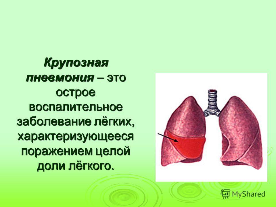 Крупозная пневмония – это острое воспалительное заболевание лёгких, характеризующееся поражением целой доли лёгкого.