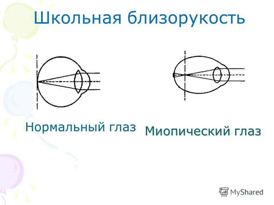 Миопический глаз Нормальный глаз Школьная близорукость
