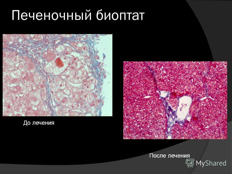 Печеночный биоптат До лечения После лечения