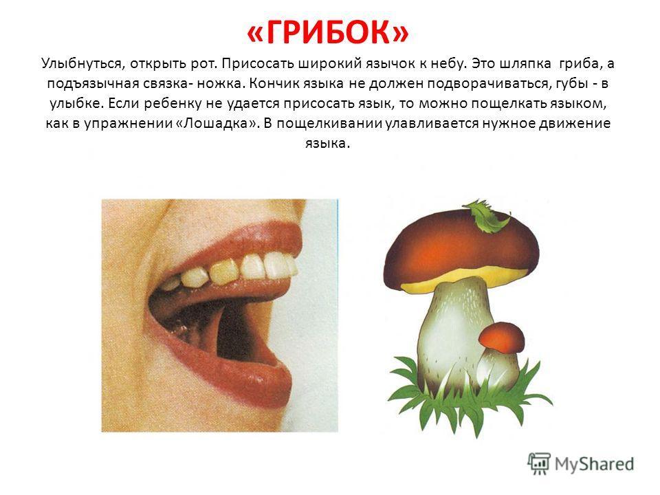 «ГРИБОК» Улыбнуться, открыть рот. Присосать широкий язычок к небу. Это шляпка гриба, а подъязычная связка- ножка. Кончик языка не должен подворачиваться, губы - в улыбке. Если ребенку не удается присосать язык, то можно пощелкать языком, как в упражн