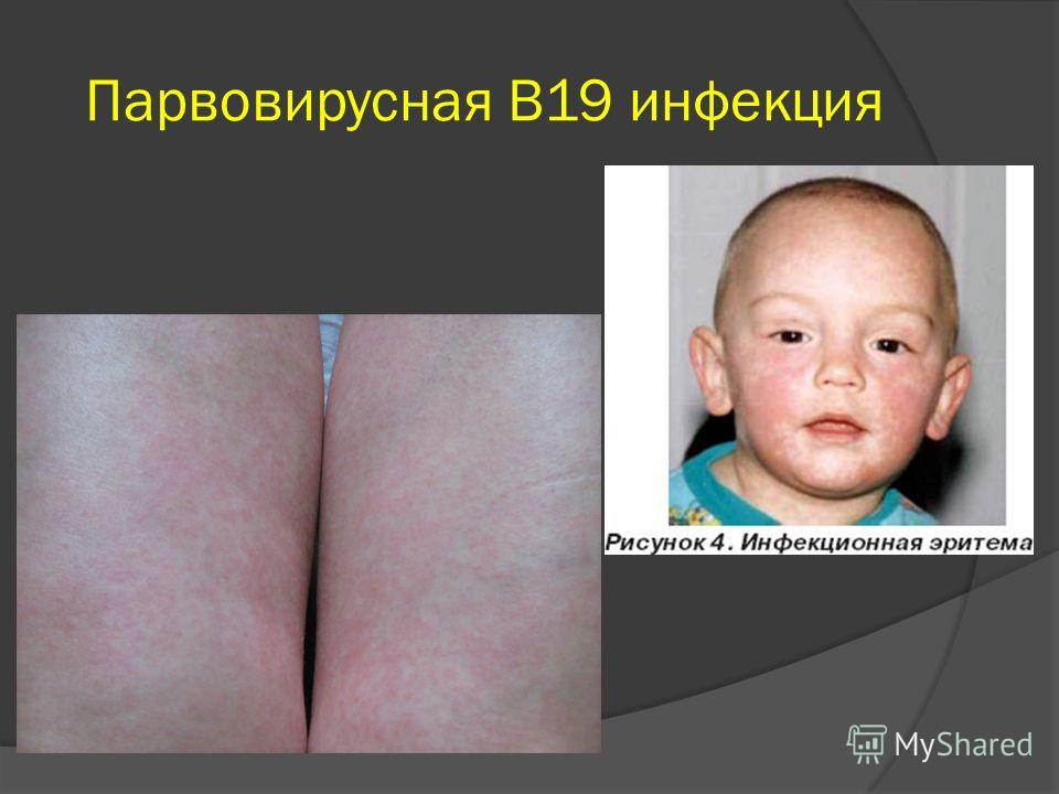 Парвовирусная В19 инфекция
