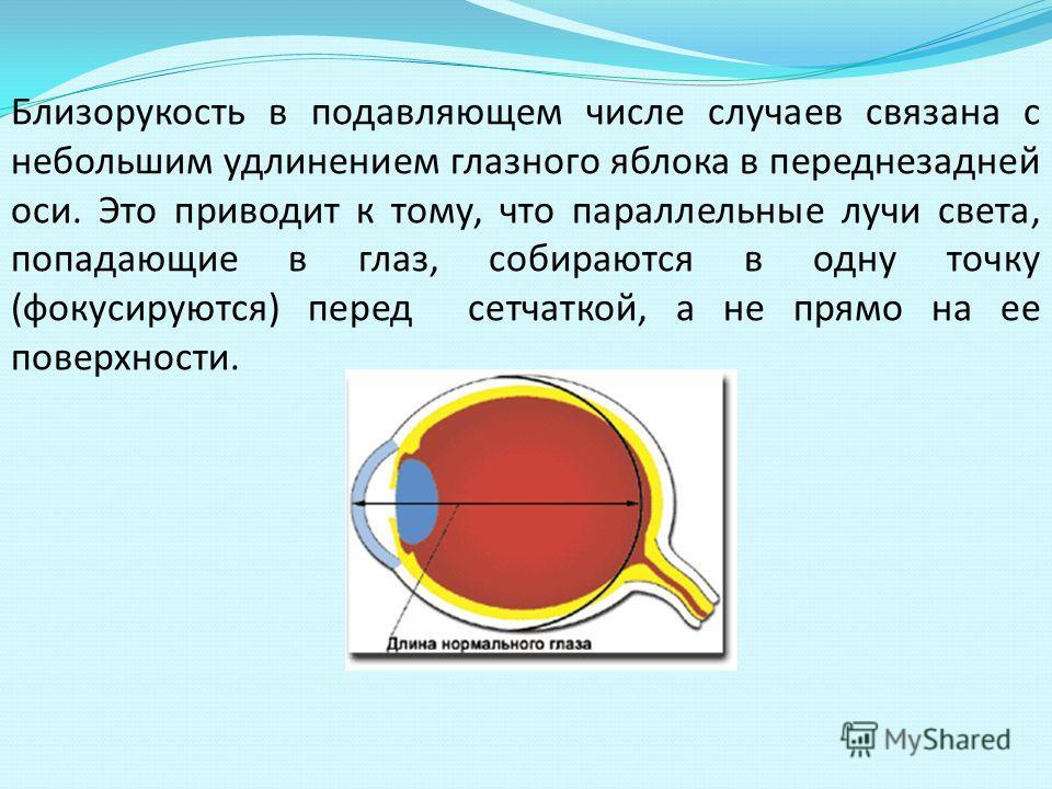 Близорукость в подавляющем числе случаев связана с небольшим удлинением глазного яблока в переднезадней оси. Это приводит к тому, что параллельные лучи света, попадающие в глаз, собираются в одну точку (фокусируются) перед сетчаткой, а не прямо на ее