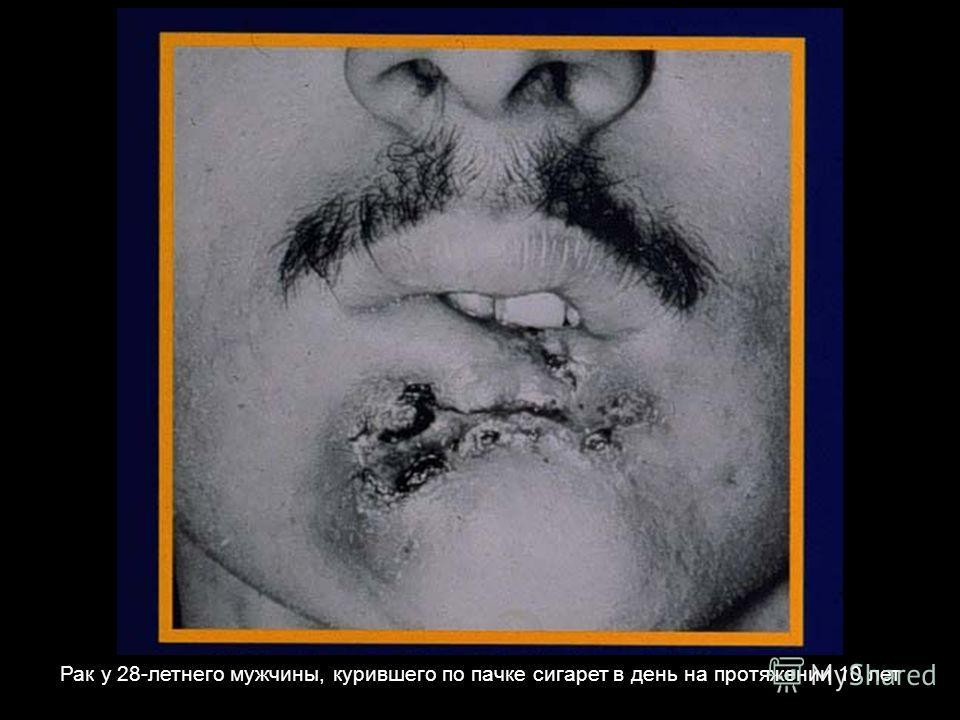 Рак у 28-летнего мужчины, курившего по пачке сигарет в день на протяжении 10 лет