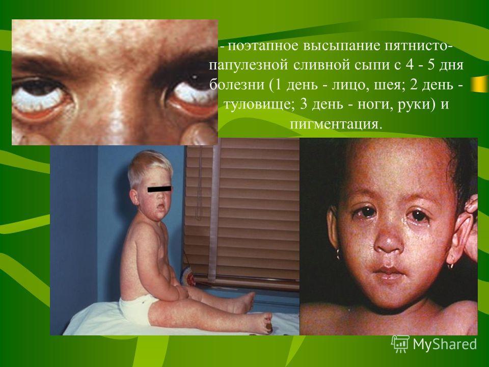 - поэтапное высыпание пятнисто- папулезной сливной сыпи с 4 - 5 дня болезни (1 день - лицо, шея; 2 день - туловище; 3 день - ноги, руки) и пигментация.