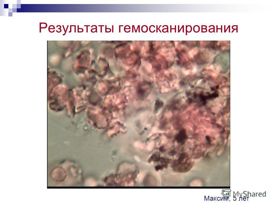 Результаты гемосканирования Максим, 5 лет