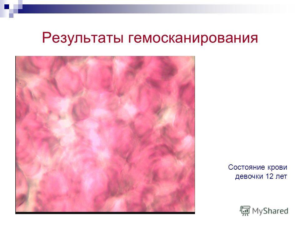 Результаты гемосканирования Состояние крови девочки 12 лет
