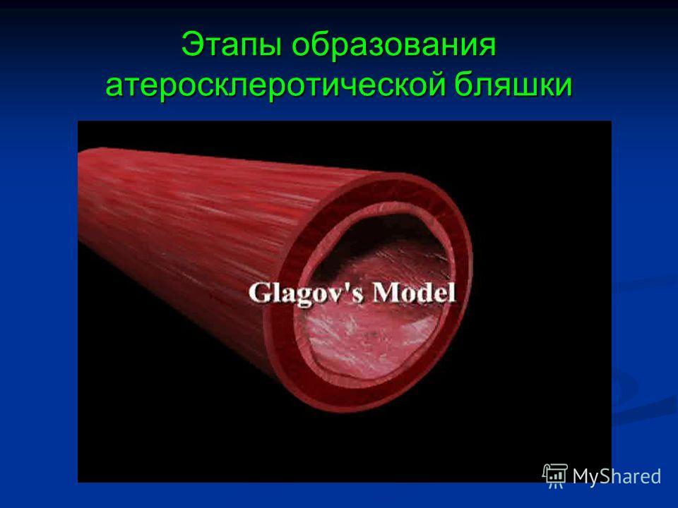Этапы образования атеросклеротической бляшки