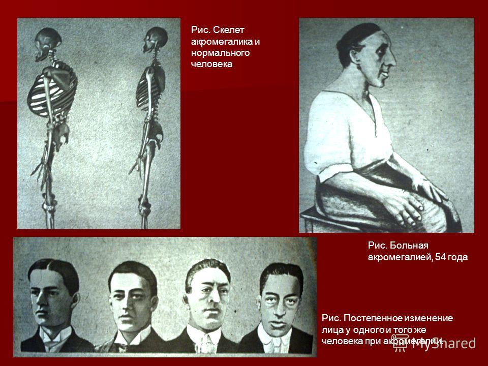 Рис. Постепенное изменение лица у одного и того же человека при акромегалии. Рис. Скелет акромегалика и нормального человека Рис. Больная акромегалией, 54 года