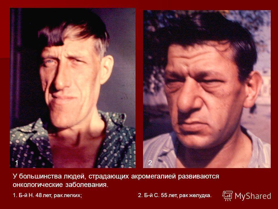 У большинства людей, страдающих акромегалией развиваются онкологические заболевания. 1. Б-й Н. 48 лет, рак легких; 2. Б-й С. 55 лет, рак желудка. 12