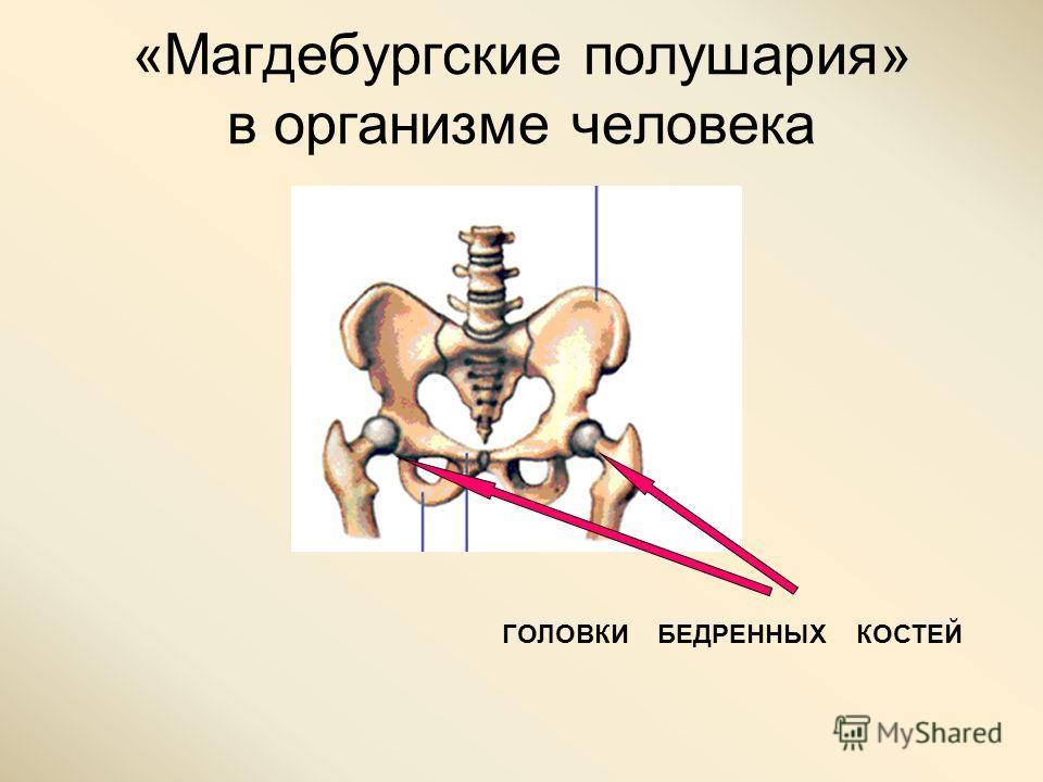 «Магдебургские полушария» в организме человека ГОЛОВКИ БЕДРЕННЫХ КОСТЕЙ