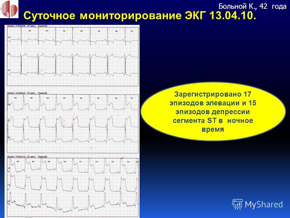 Зарегистрировано 17 эпизодов элевации и 15 эпизодов депрессии сегмента ST в ночное время Суточное мониторирование ЭКГ 13.04.10. Больной К., 42 года