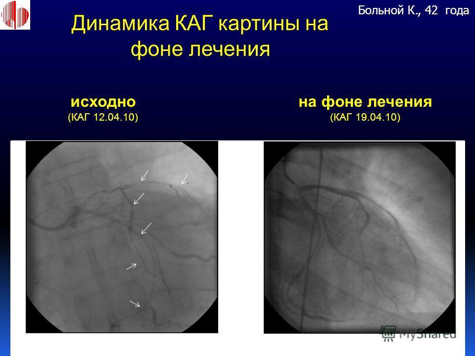 Больной К., 42 года исходно (КАГ 12.04.10) на фоне лечения (КАГ 19.04.10) Динамика КАГ картины на фоне лечения