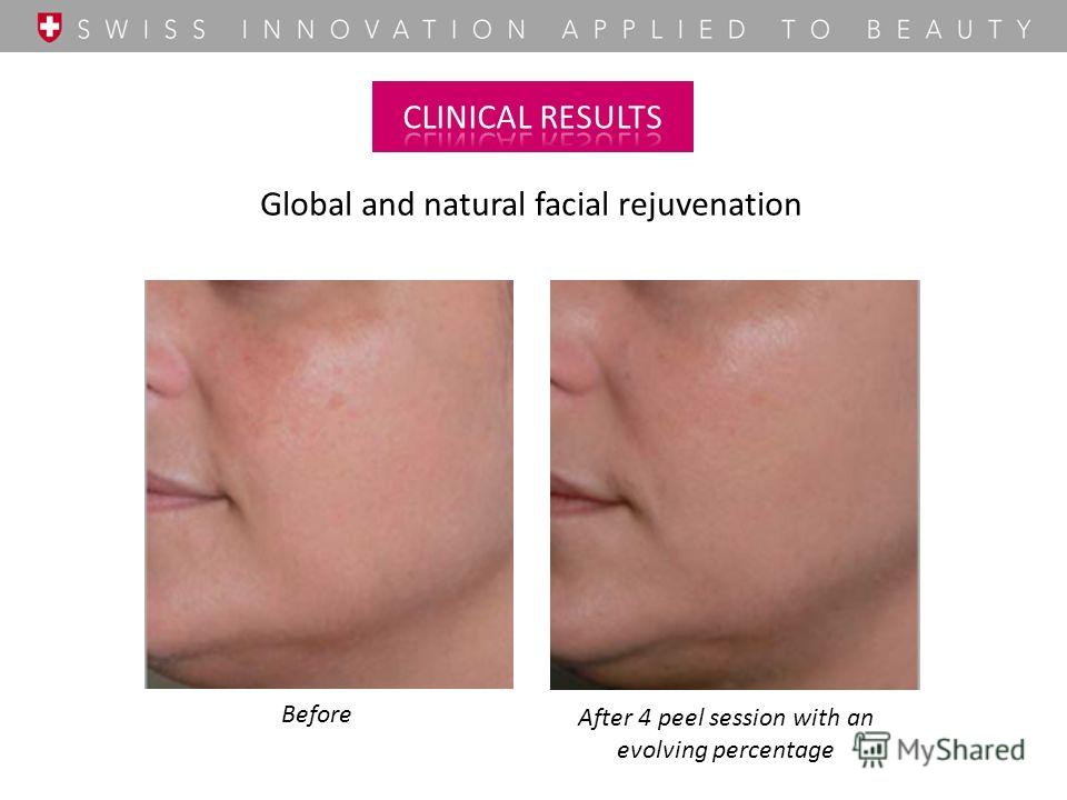 Global and natural facial rejuvenation Before After 4 peel session with an evolving percentage