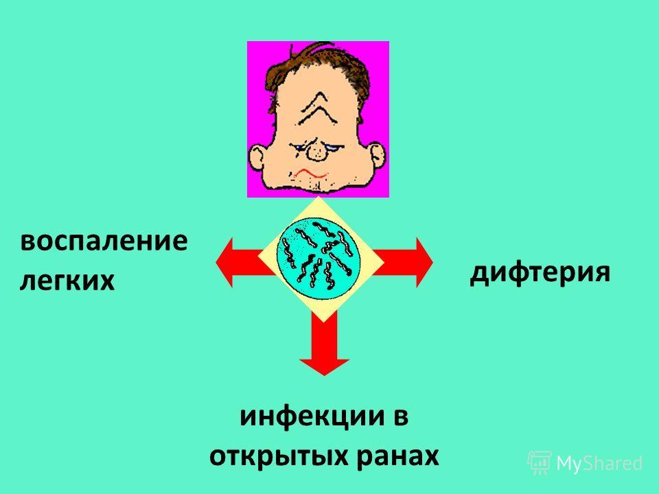 дифтерия воспаление легких инфекции в открытых ранах