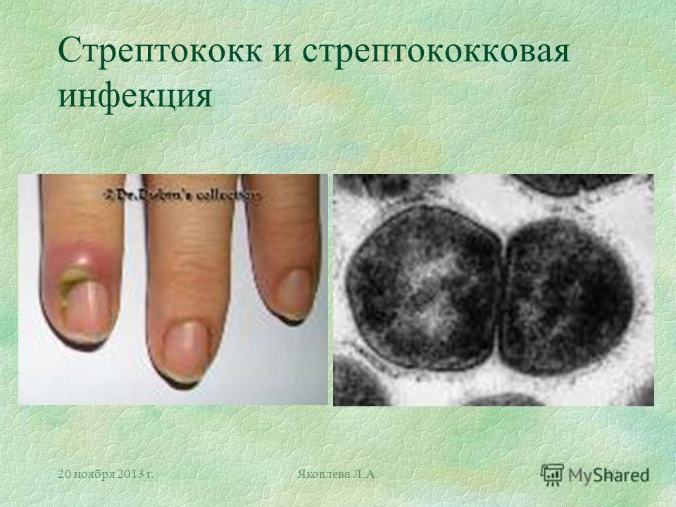 20 ноября 2013 г.Яковлева Л.А.20 Стрептококк и стрептококковая инфекция
