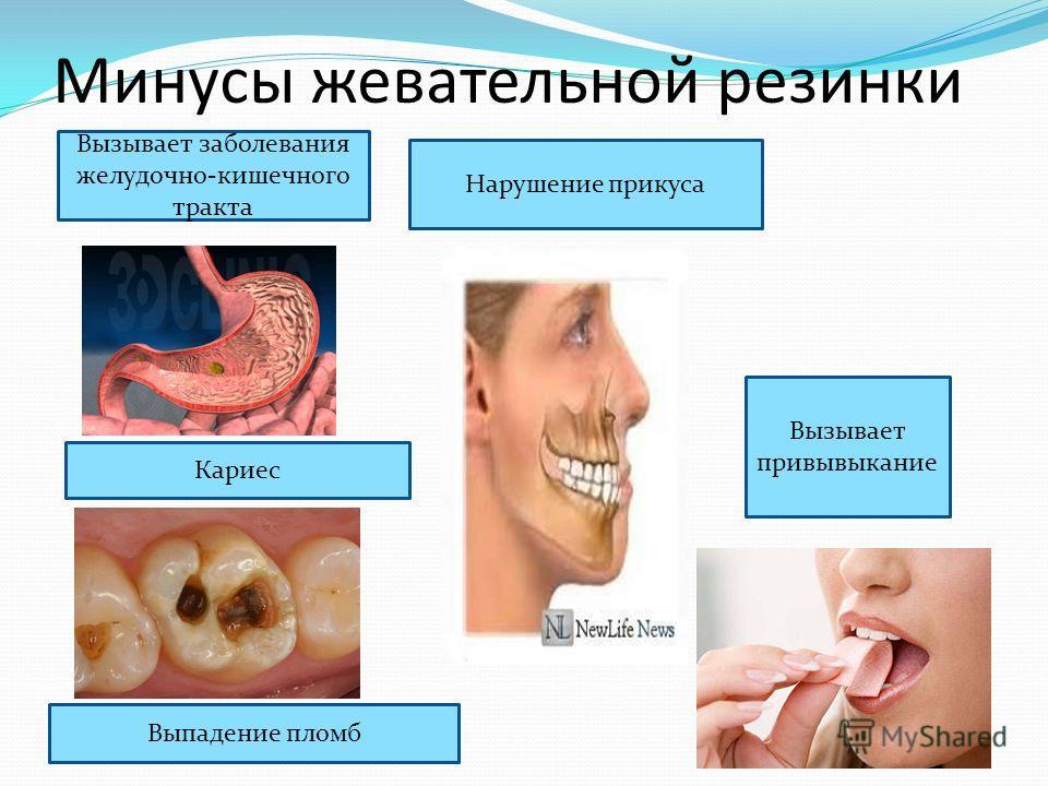Минусы жевательной резинки Вызывает заболевания желудочно-кишечного тракта Кариес Выпадение пломб Нарушение прикуса Вызывает привывыкание