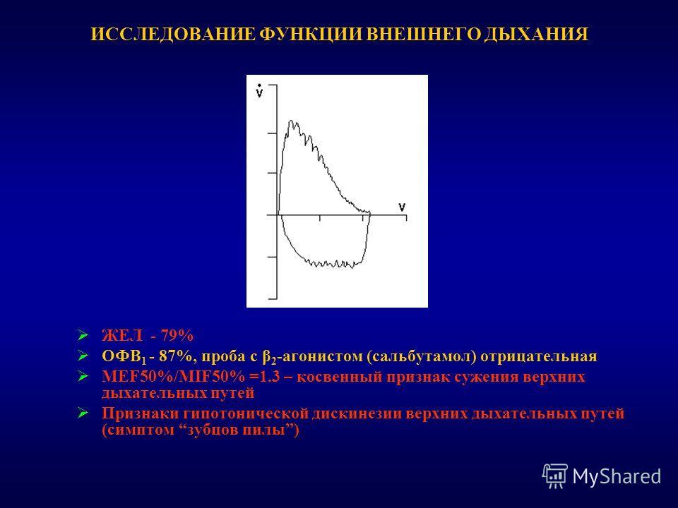 ИССЛЕДОВАНИЕ ФУНКЦИИ ВНЕШНЕГО ДЫХАНИЯ ЖЕЛ - 79% ОФВ 1 - 87%, проба с β 2 -агонистом (сальбутамол) отрицательная MEF50%/MIF50% =1.3 – косвенный признак сужения верхних дыхательных путей Признаки гипотонической дискинезии верхних дыхательных путей (сим