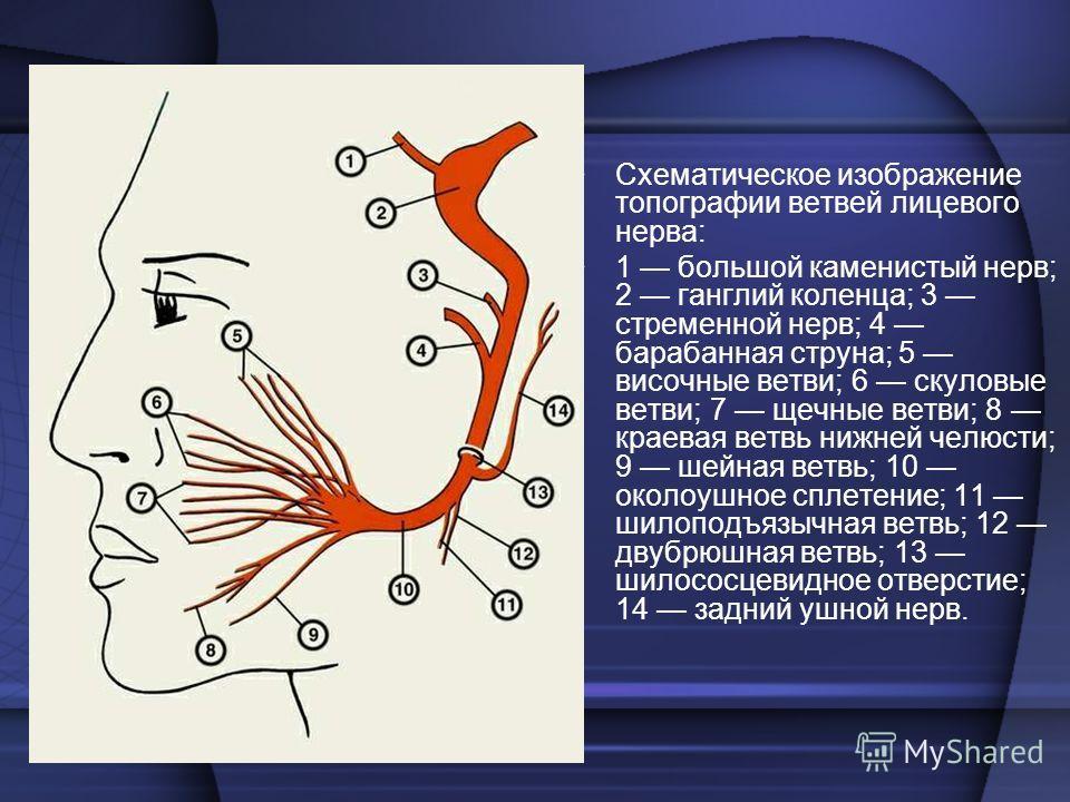 Схематическое изображение топографии ветвей лицевого нерва: 1 большой каменистый нерв; 2 ганглий коленца; 3 стременной нерв; 4 барабанная струна; 5 височные ветви; 6 скуловые ветви; 7 щечные ветви; 8 краевая ветвь нижней челюсти; 9 шейная ветвь; 10 о