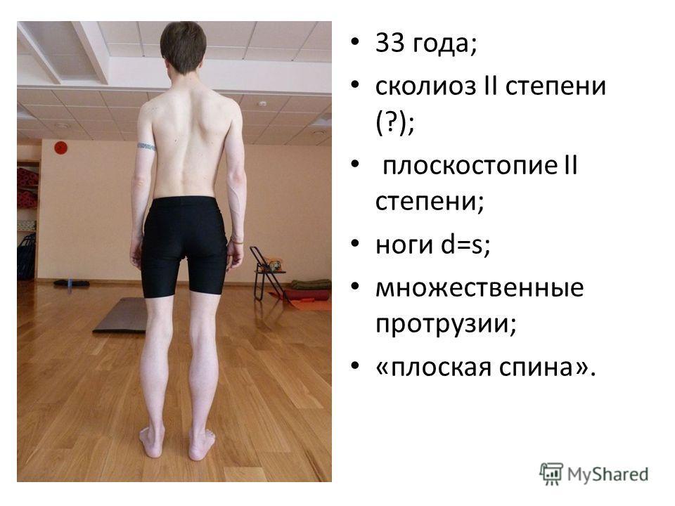 33 года; сколиоз II степени (?); плоскостопие II степени; ноги d=s; множественные протрузии; «плоская спина».