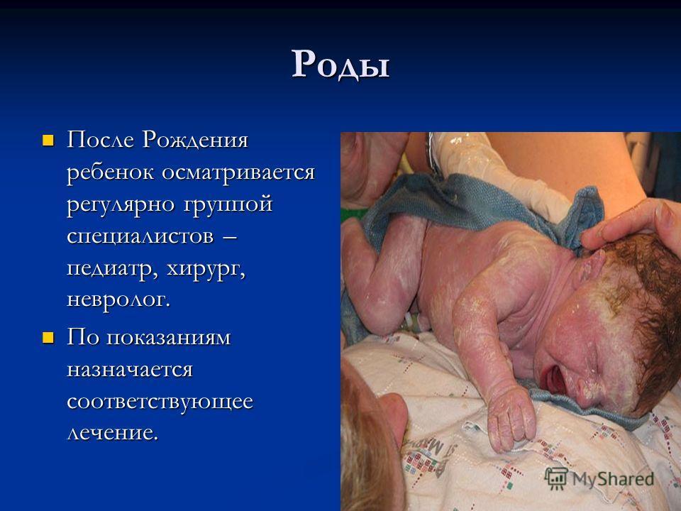 Роды После Рождения ребенок осматривается регулярно группой специалистов – педиатр, хирург, невролог. После Рождения ребенок осматривается регулярно группой специалистов – педиатр, хирург, невролог. По показаниям назначается соответствующее лечение.