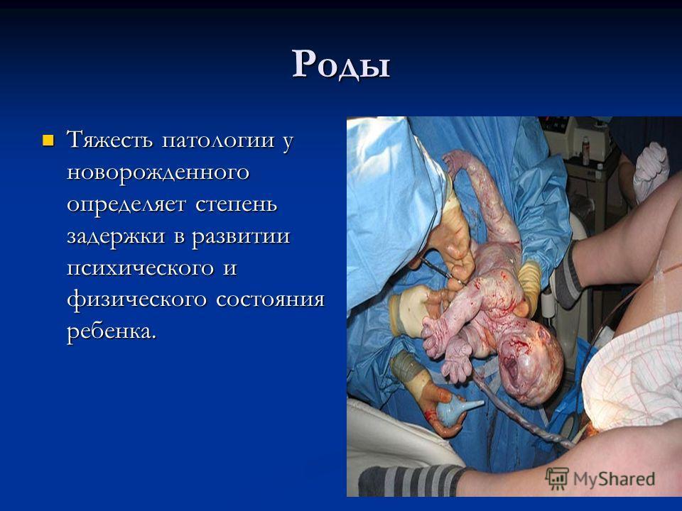 Роды Тяжесть патологии у новорожденного определяет степень задержки в развитии психического и физического состояния ребенка. Тяжесть патологии у новорожденного определяет степень задержки в развитии психического и физического состояния ребенка.