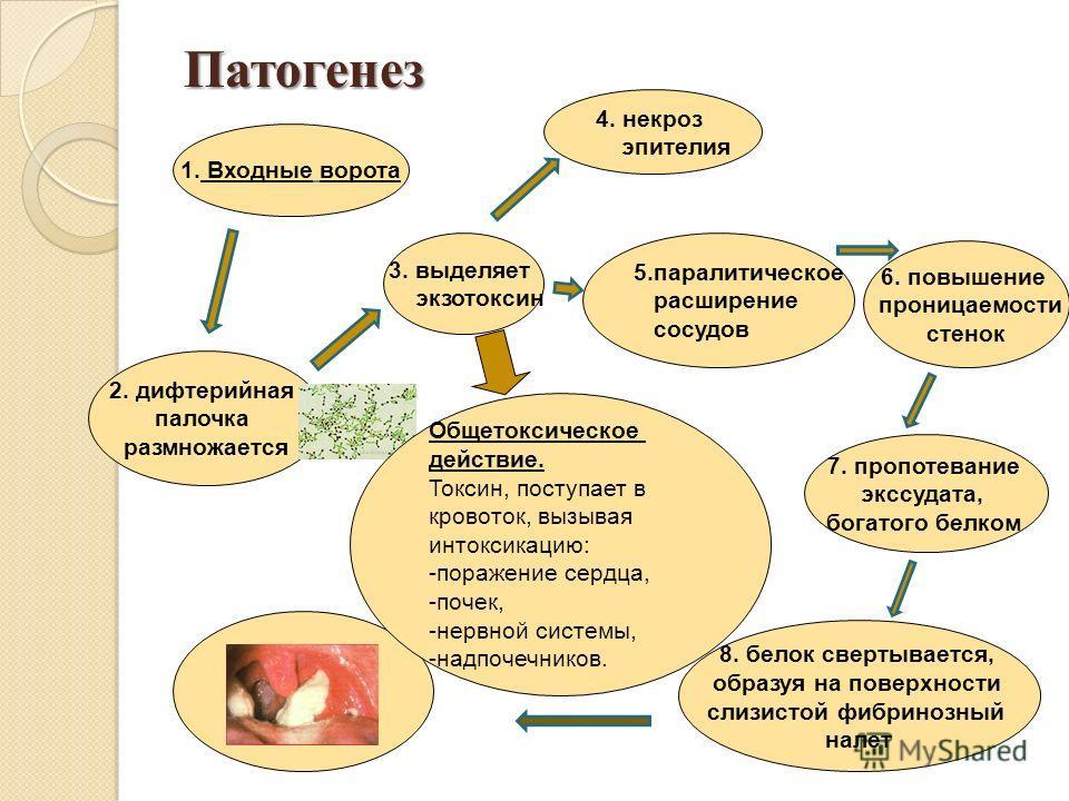 Патогенез 2. дифтерийная палочка размножается 3. выделяет экзотоксин 4. некроз эпителия 5.паралитическое расширение сосудов 6. повышение проницаемости стенок 7. пропотевание экссудата, богатого белком 8. белок свертывается, образуя на поверхности сли