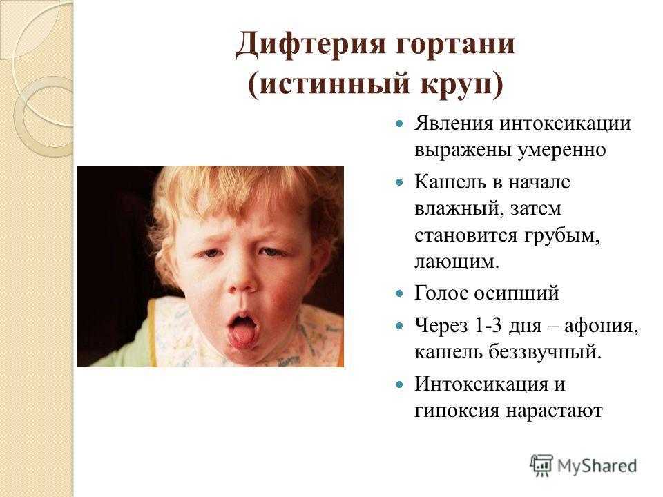 Дифтерия гортани (истинный круп) Явления интоксикации выражены умеренно Кашель в начале влажный, затем становится грубым, лающим. Голос осипший Через 1-3 дня – афония, кашель беззвучный. Интоксикация и гипоксия нарастают