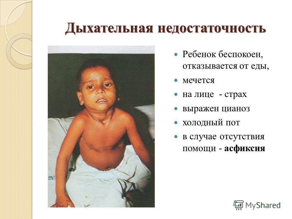 Дыхательная недостаточность Ребенок беспокоен, отказывается от еды, мечется на лице - страх выражен цианоз холодный пот в случае отсутствия помощи - асфиксия
