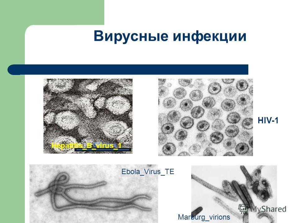 Вирусные инфекции Hepatitis_B_virus_1 HIV-1 Ebola_Virus_TE Marburg_virions