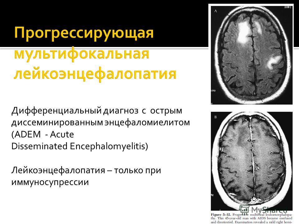 Дифференциальный диагноз с острым диссеминированным энцефаломиелитом (ADEM - Acute Disseminated Encephalomyelitis) Лейкоэнцефалопатия – только при иммуносупрессии