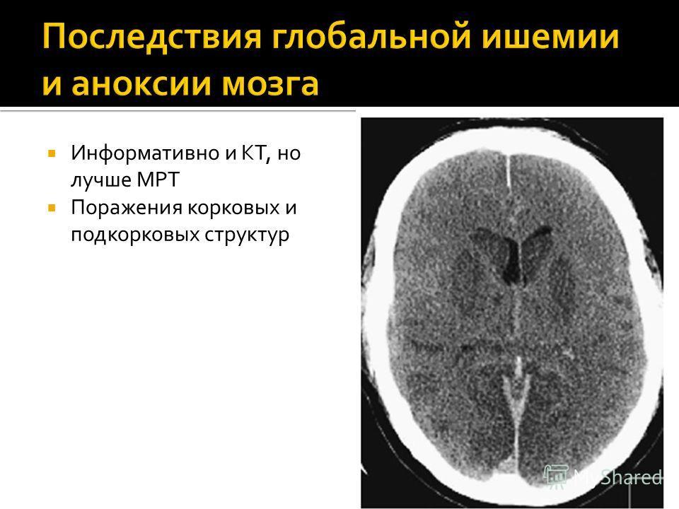 Информативно и КТ, но лучше МРТ Поражения корковых и подкорковых структур
