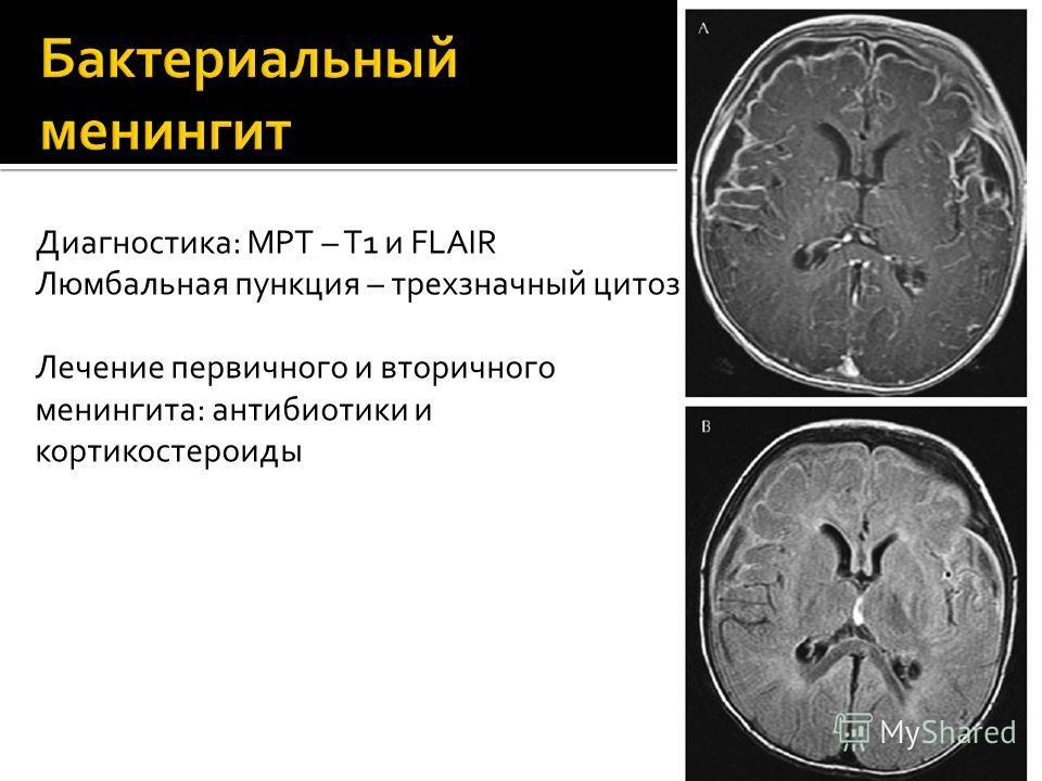 Диагностика: МРТ – T1 и FLAIR Люмбальная пункция – трехзначный цитоз Лечение первичного и вторичного менингита: антибиотики и кортикостероиды