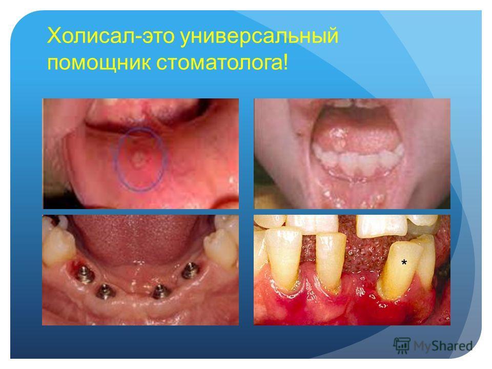 Холисал-это универсальный помощник стоматолога!
