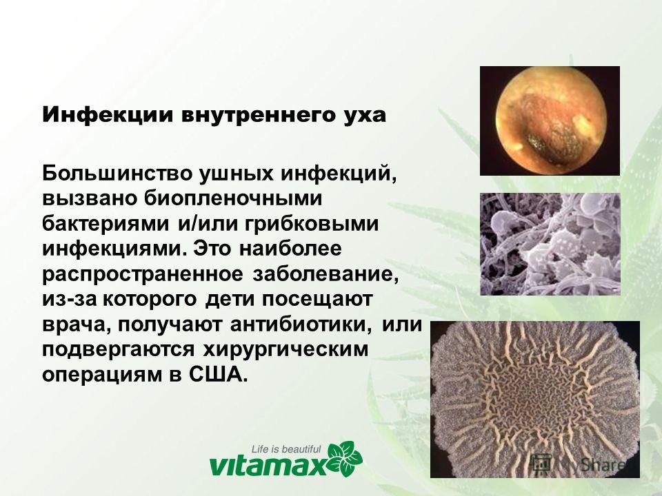 Инфекции внутреннего уха Большинство ушных инфекций, вызвано биопленочными бактериями и/или грибковыми инфекциями. Это наиболее распространенное заболевание, из-за которого дети посещают врача, получают антибиотики, или подвергаются хирургическим опе